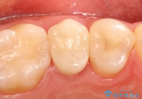 歯が割れたと来院。エクストリュージョンから歯冠修復まで。の治療後