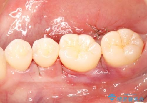 侵襲性歯周炎によるシビアな骨欠損 再生治療で回復の治療中
