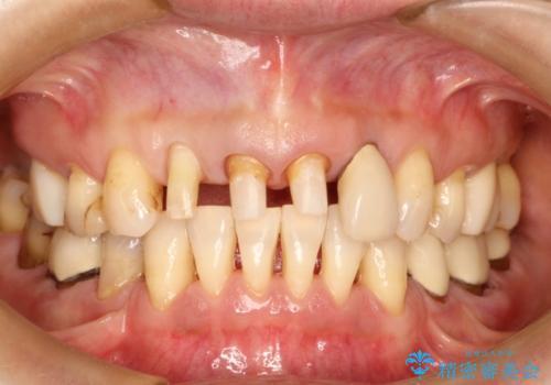前歯の被せものの治療中
