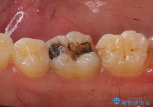 メタルボンドクラウン PGA(ゴールド)インレー 虫歯治療の治療前