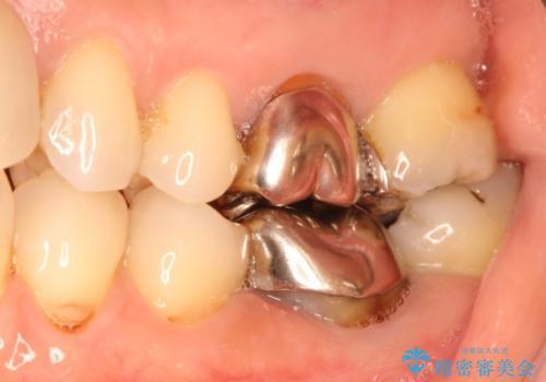 目立つ銀歯を白くしたい 銀歯からセラミックへの再補綴