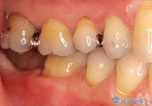 目立つ銀歯を白くしたい 銀歯からセラミックへの再補綴の治療前