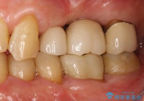 歯根破折により抜歯となってしまった奥歯のインプラントによる咬み合わせ回復の治療後