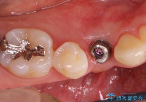 インプラント前提の矯正治療が終了した。銀座しらゆり矯正歯科からインプラント治療の紹介で来院。の治療後
