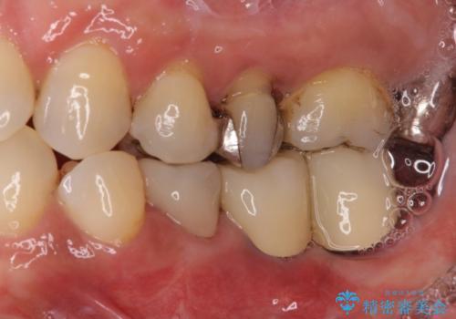 奥歯が抜けそう 部分矯正による咬み合わせの改善とインプラントによる補綴治療の症例 治療後