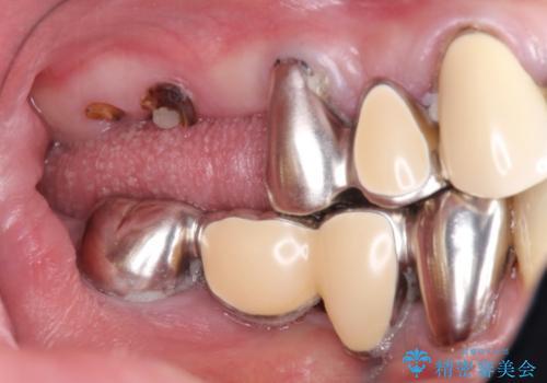 奥歯で噛めない インプラントとセラミックによる咬み合わせの回復の症例 治療前