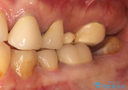奥歯の被せものの治療中