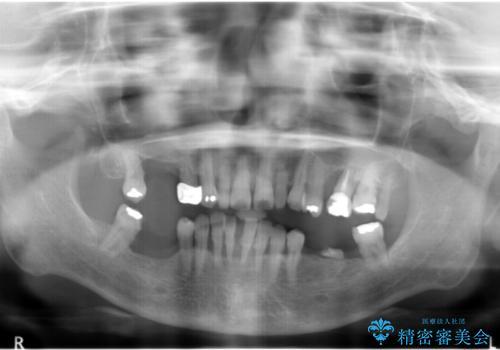 全顎歯周病治療の症例 治療前