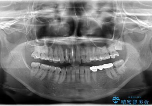 奥歯のブリッジをセラミックにやりかえたいの治療前