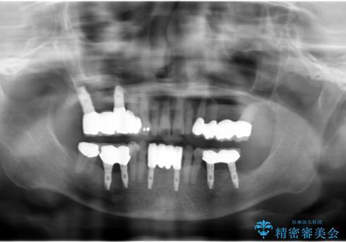 全顎歯周病治療の症例 治療後
