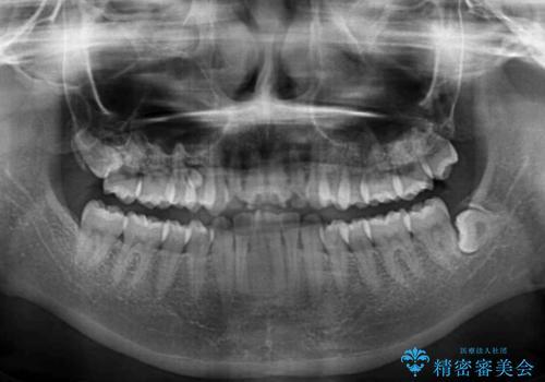 上の出っ歯を治したい インビザラインによる非抜歯矯正治療の治療前