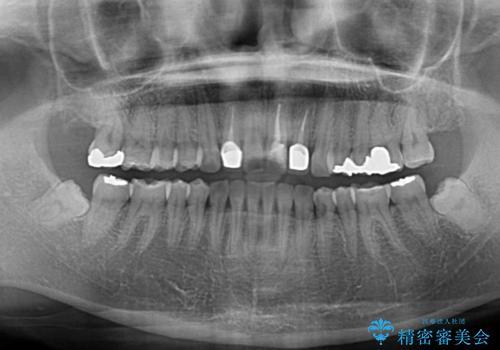 前歯の歯並びと変色を改善 インビザラインとオールセラミックの治療後