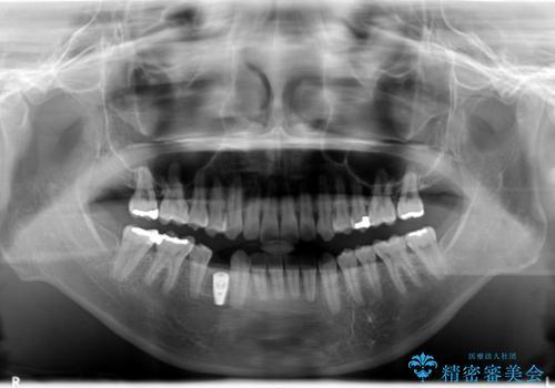 インプラント前提の矯正治療が終了した。銀座しらゆり矯正歯科からインプラント治療の紹介で来院。の治療中