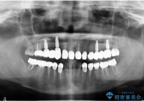全顎的に多発した虫歯治療の治療後
