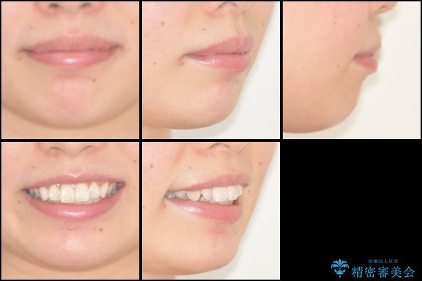 前歯の出っ歯とでこぼこを抜歯矯正で改善 目立たないワイヤー矯正の治療前(顔貌)