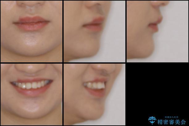 上の出っ歯を治したい インビザラインによる非抜歯矯正治療の治療前(顔貌)