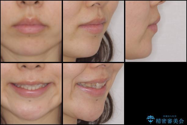 前歯の歯並びと変色を改善 インビザラインとオールセラミックの治療前(顔貌)