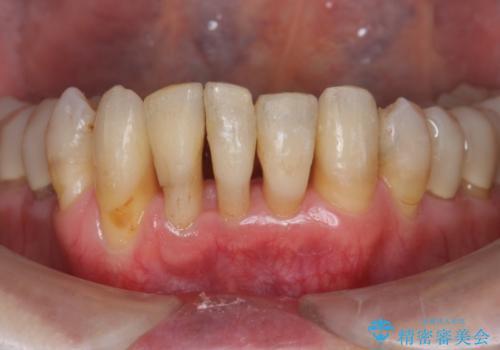 ワイヤーとインビザライン を用いた前歯 小矯正治療の治療中