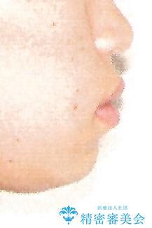 表側のワイヤー矯正 口元の改善をはかる抜歯矯正の治療前(顔貌)