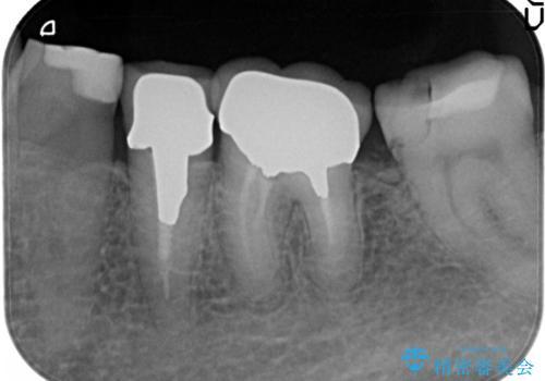 奥歯の被せものの治療前