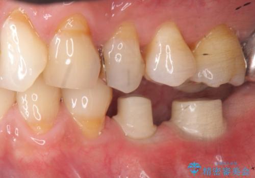 [歯の欠損] インプラントによる咬合回復の治療中