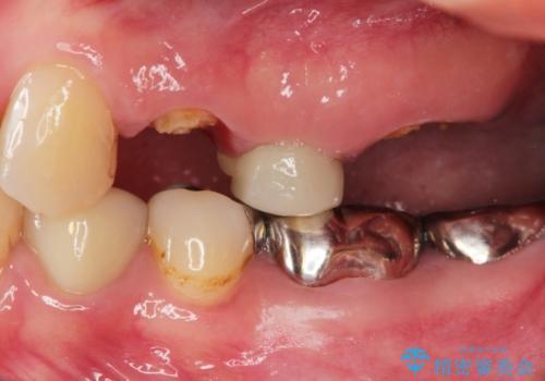 全顎的に多発した虫歯治療の治療前