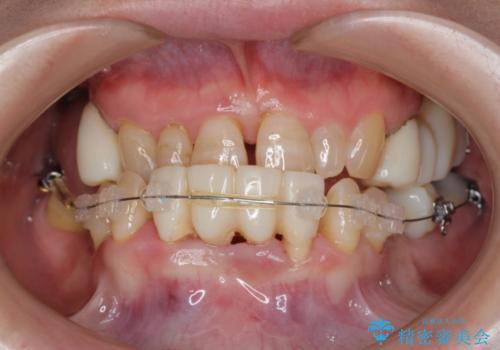全顎歯周病治療の治療中