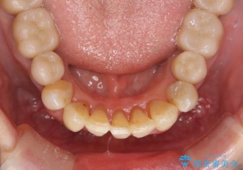 ワイヤーとインビザライン を用いた前歯 小矯正治療の治療後