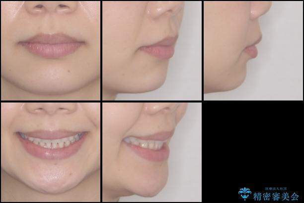 長年気にしていた前歯をインビザラインで整えるの治療後(顔貌)