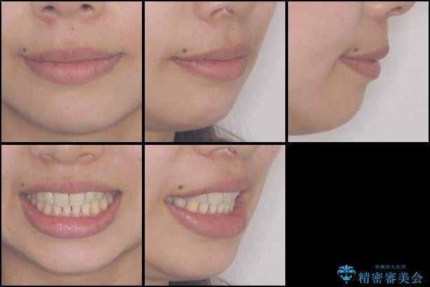 出産しながらでも綺麗な歯並びに インビザラインによる矯正治療の治療後(顔貌)
