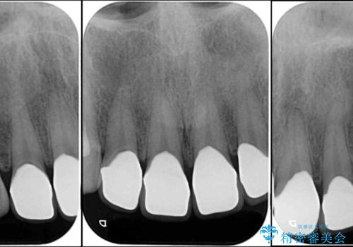 隙間の空いた前歯を治したい 部分矯正とオールセラミッククラウンの治療後