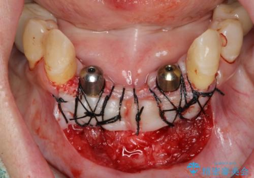 骨造成を伴う下顎前歯インプラントの治療中