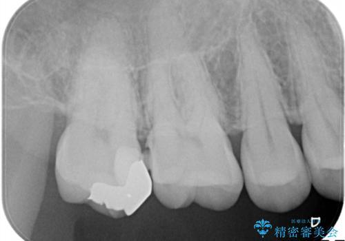 むし歯の治療の治療前