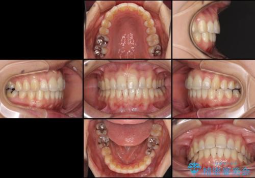 出産しながらでも綺麗な歯並びに インビザラインによる矯正治療の治療後