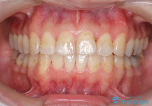 歯のガタガタをマウスピース矯正で治療の症例 治療後