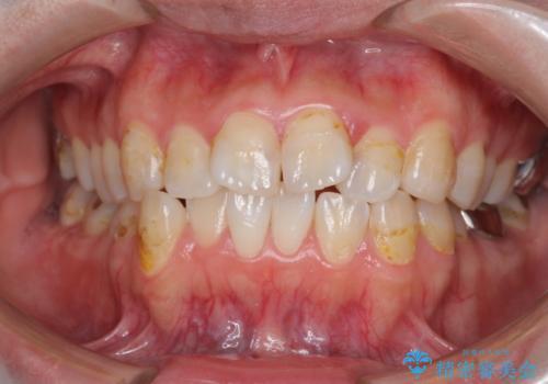 歯のガタガタをマウスピース矯正で治療の症例 治療前
