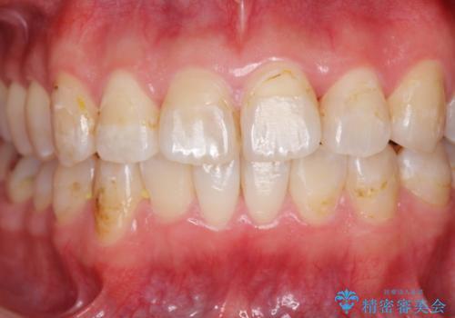 歯のガタガタをマウスピース矯正で治療の治療中