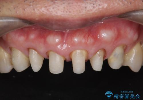 不自然なセラミックが気になる オールセラミックジルコニアクラウンによる前歯審美治療の治療中