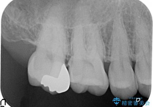 むし歯の治療の治療後