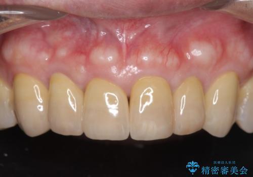 不自然なセラミックが気になる オールセラミックジルコニアクラウンによる前歯審美治療の治療後