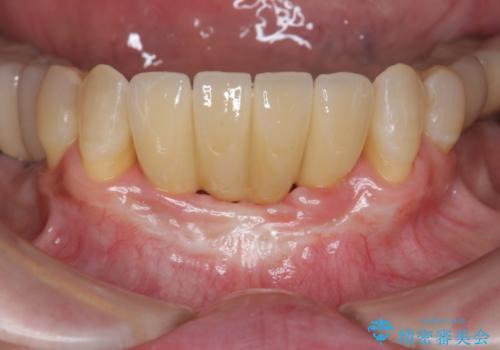 骨造成を伴う下顎前歯インプラントの治療後