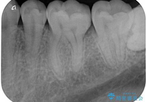 小さい虫歯 見た目がきれいなセラミックインレーの治療後