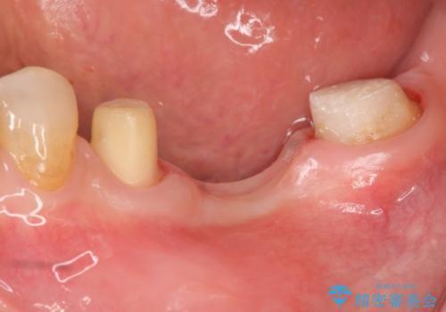 歯が割れた ブリッジによる咬合機能回復の治療中