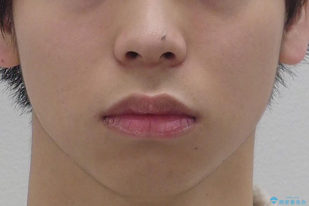 前歯のねじれ 下の歯のガタガタの治療前(顔貌)