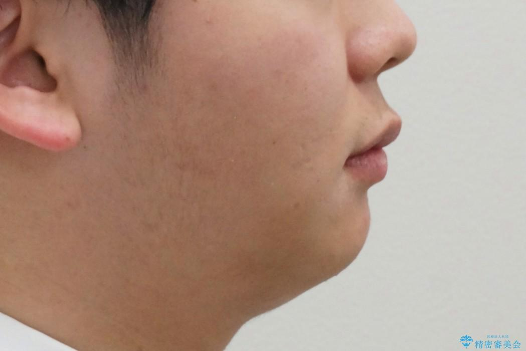 前歯のねじれ 下の歯のガタガタの治療後(顔貌)