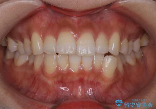 インビザラインで前歯のガタガタを改善の治療前