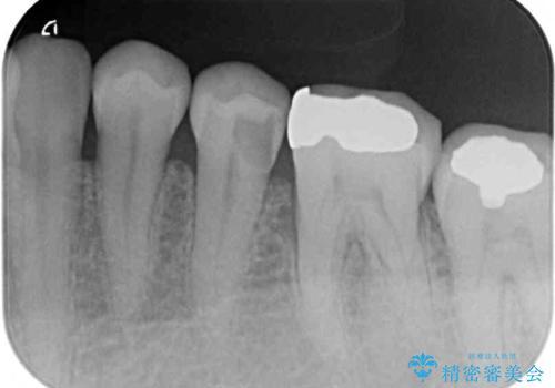 冷たいものがしみる 神経を極力残した虫歯治療の治療前