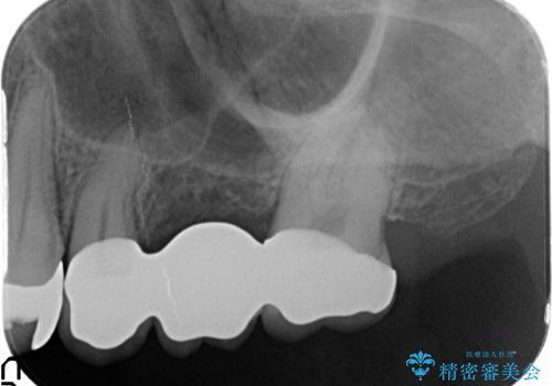 [噛むと痛い]残すことができない歯のオールセラミックブリッジ治療の治療後