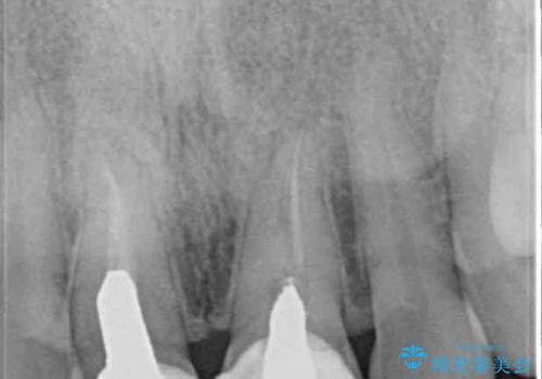 短い前歯を長くしたい 外科処置を用いた前歯のセラミック治療の治療前