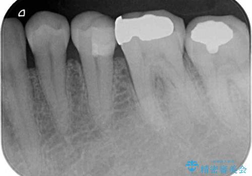 冷たいものがしみる 神経を極力残した虫歯治療の治療中